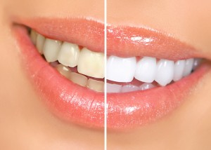 yellow-to-white-teeth-300x214
